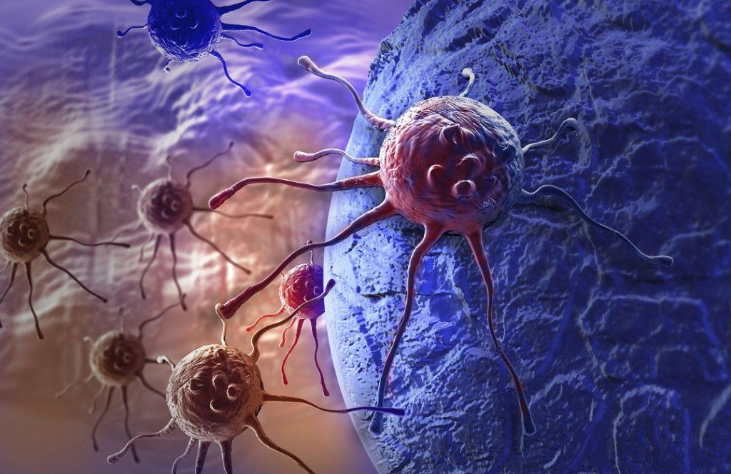 Kreftceller Illustrasjon: Thinkstock